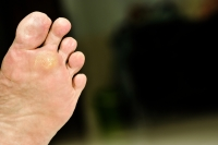 What Causes Plantar Warts?
