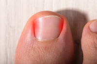 Can Ingrown Toenails Be Prevented?