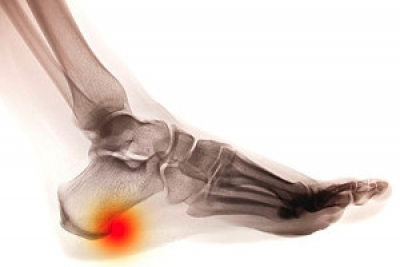 What Can Help Heel Spur Pain?