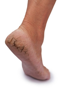 Causes of Cracked Heels
